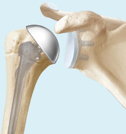 Anatomische Schulterprothese