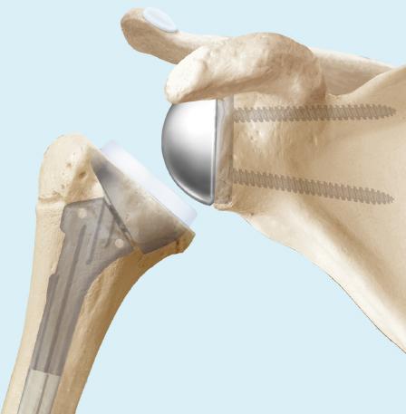Inverse Schulterprothese
