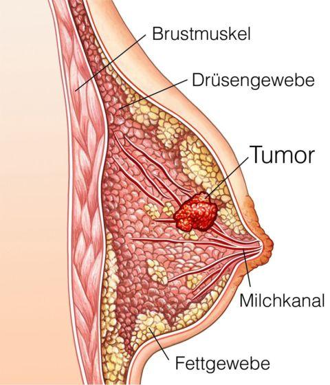 brustkrebs stadien bilder