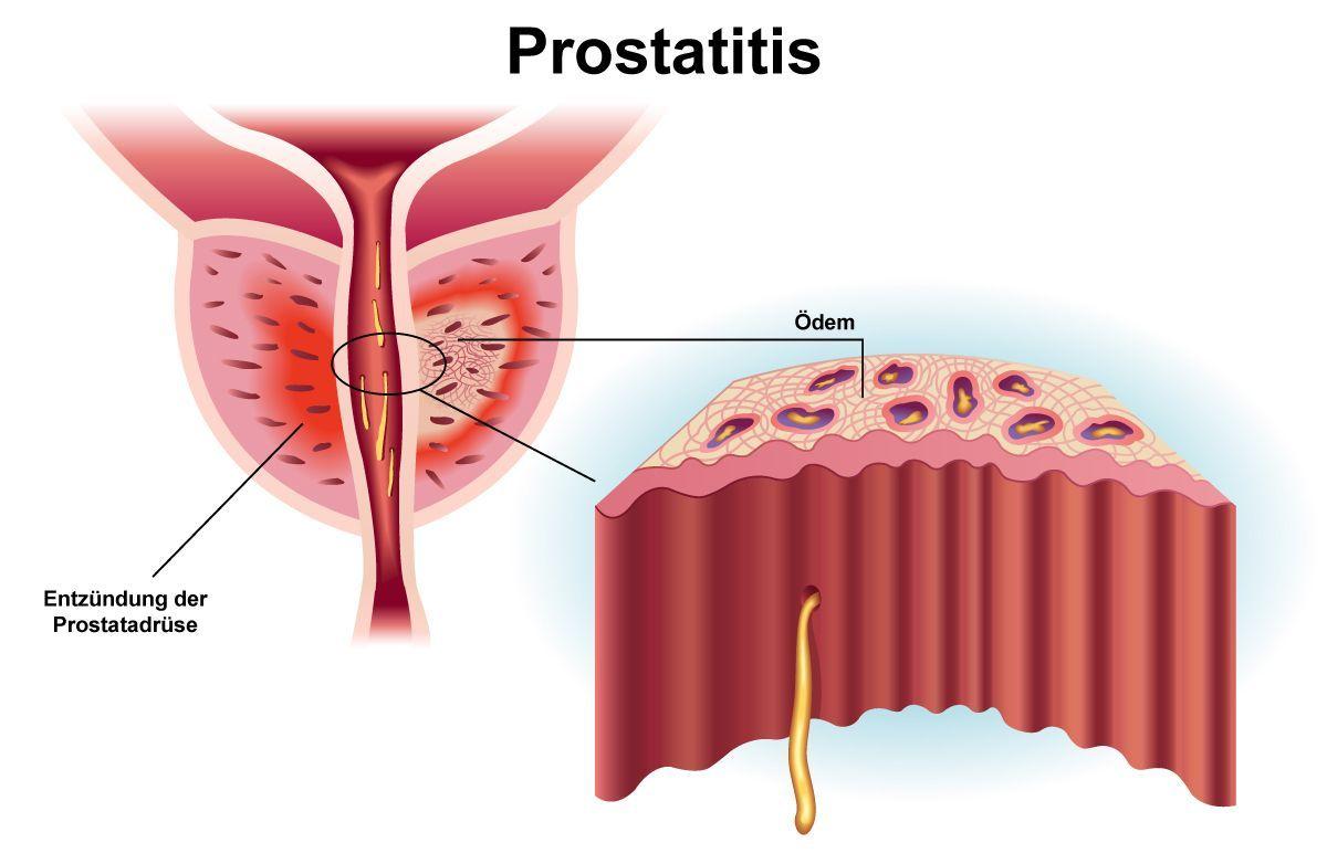 akute prostatitis antibiotika Diffúz típusú krónikus prosztatitis