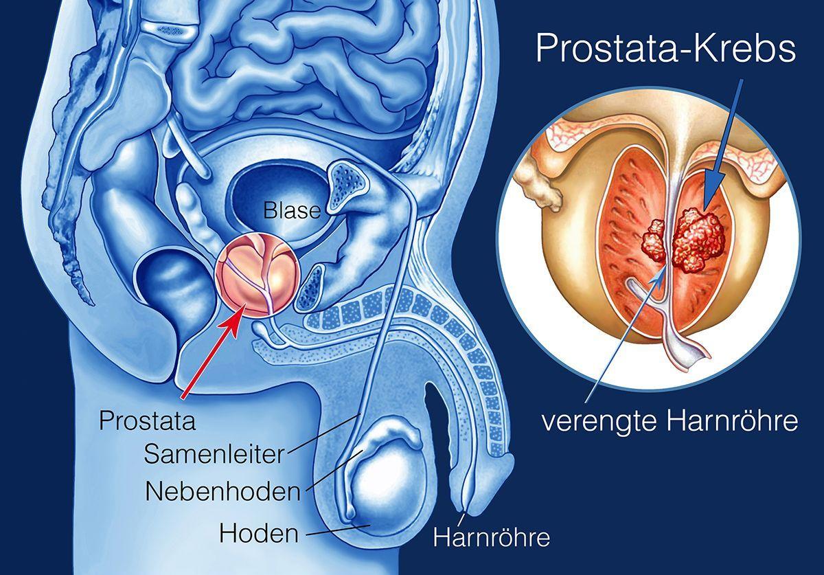 prostatakrebs bilder