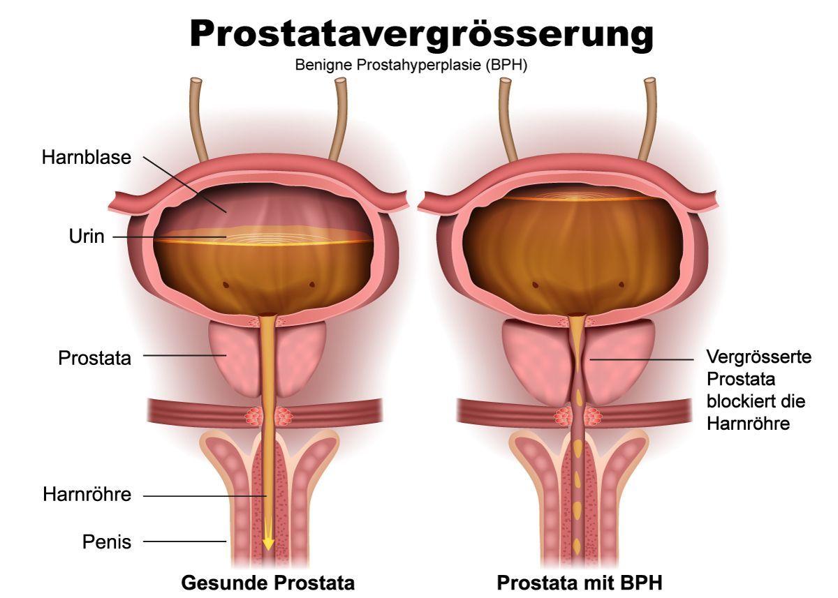 benigne prostatahyperplasie bph symptome Hogyan tudhatom meg a prostatitis betegséget