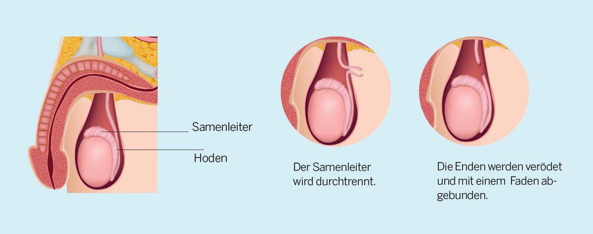 Vasektomie / Unterbindung