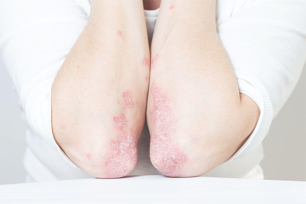 Psoriasis-Arthritis