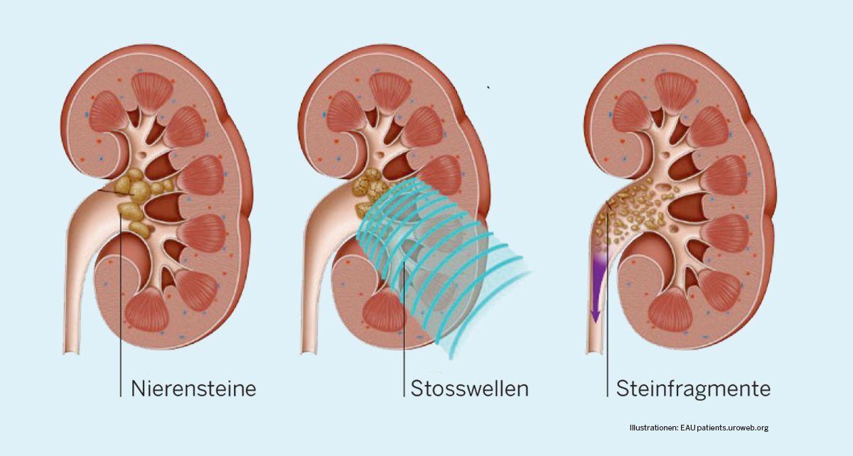 extrakorporalen Stosswellenlithotripsie (ESWL)