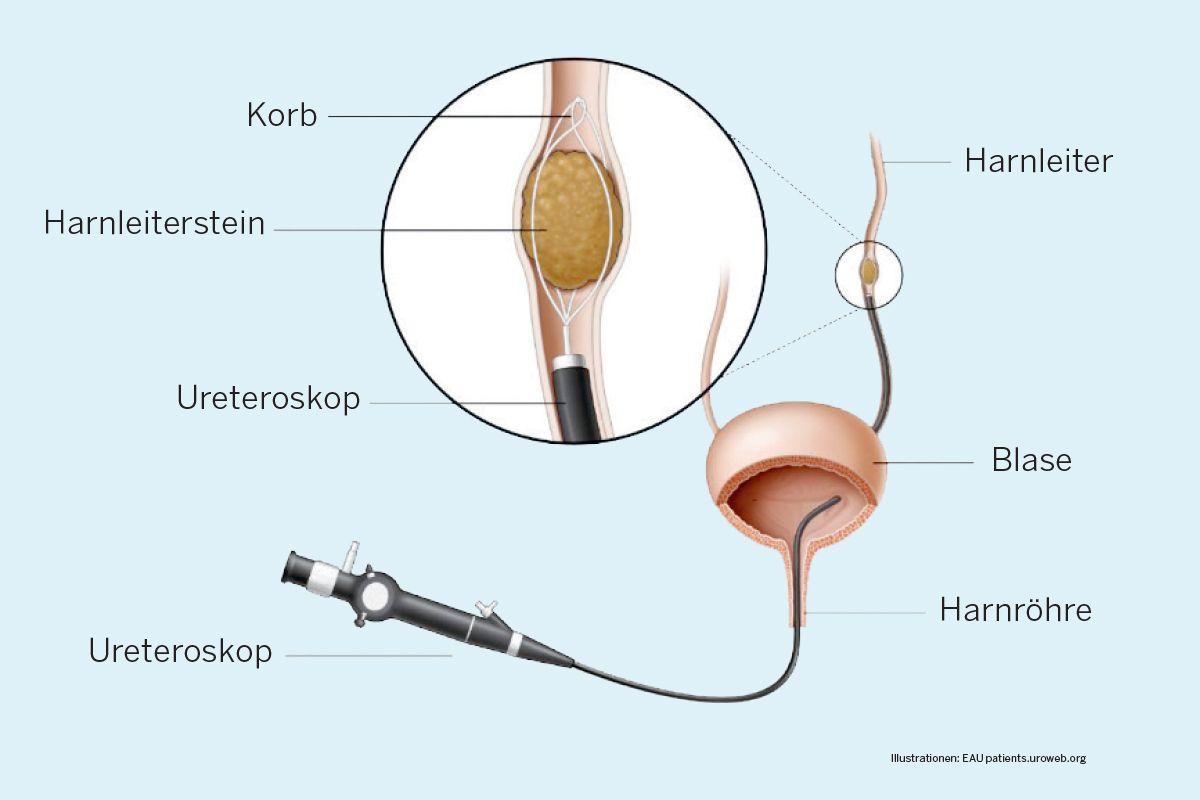 Ureterorenoskopie (URS)