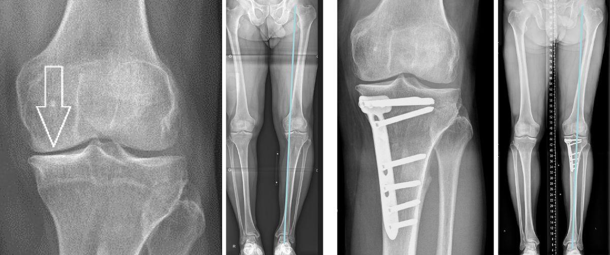 Kniearthrose bei O-Beinen
