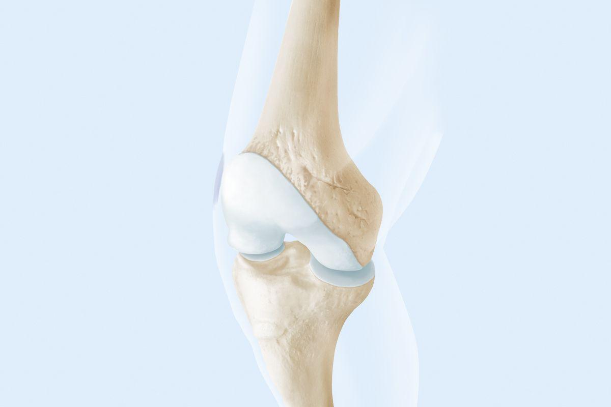 Patellaluxation / Kniescheibeninstabilität