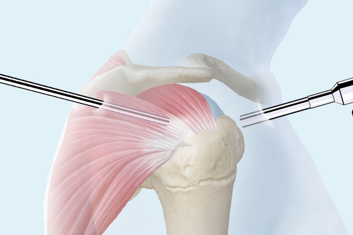 Schultergelenkspiegelung / Schulterarthroskopie