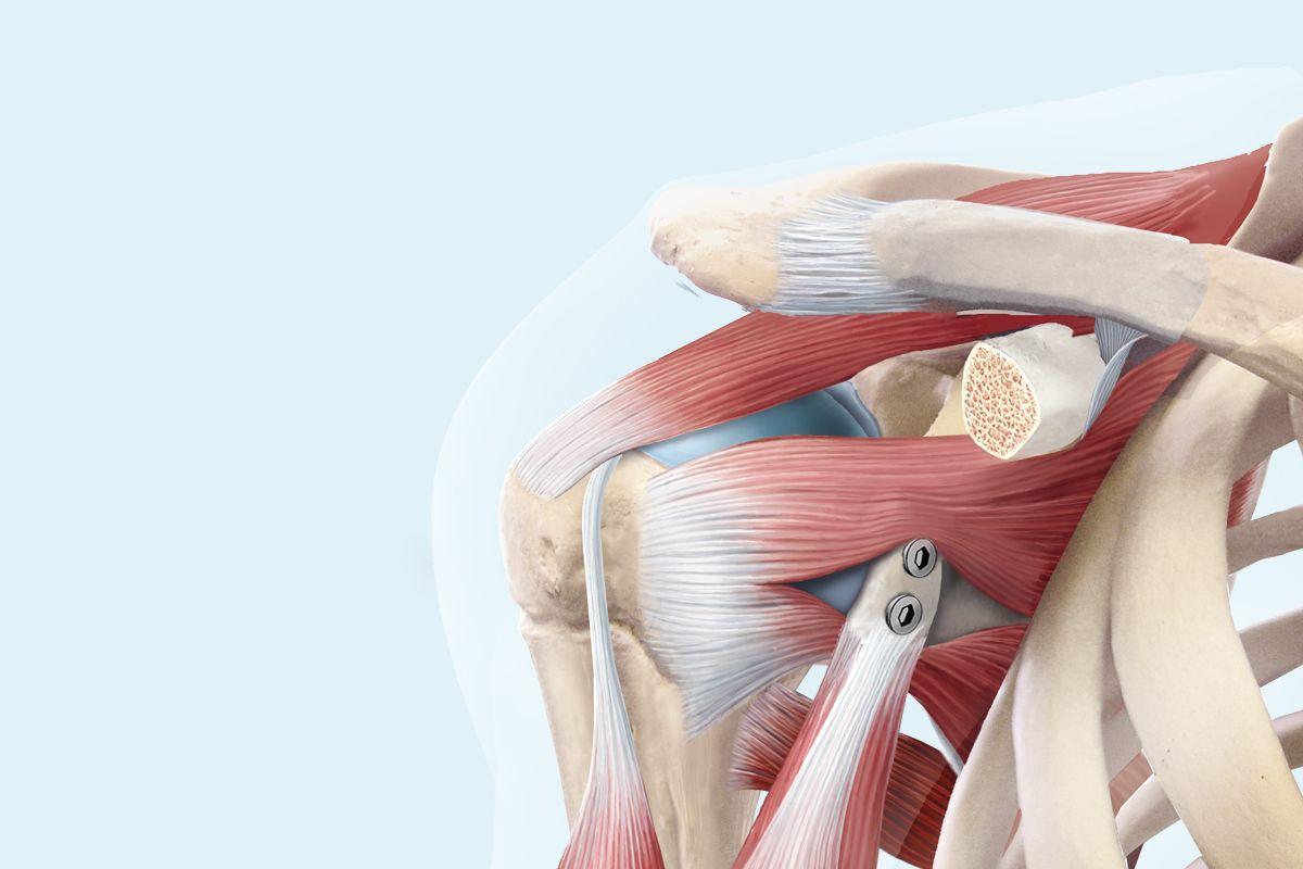 Schulterluxation / Schulterinstabilität