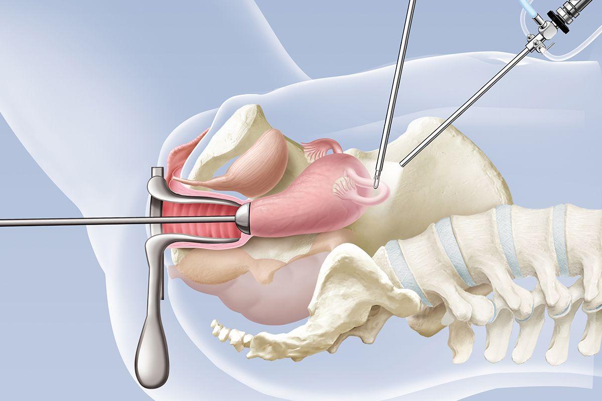Gebärmutterentfernung (Hysterektomie) KSW